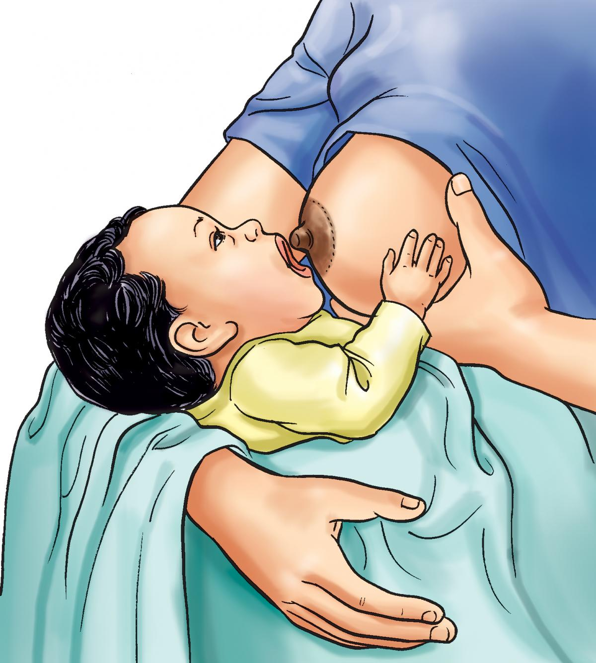 Breastfeeding - Breastfeeding pre-attachment 0-6mo - 05 - Nepal