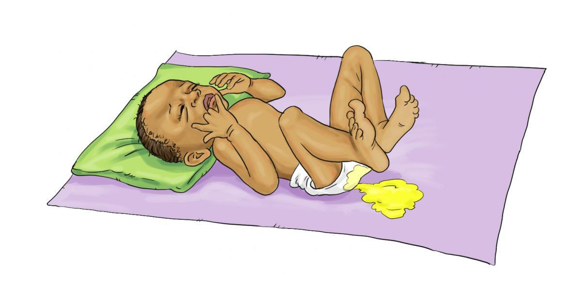 Breastfeeding - Baby with diarrhea 0-6mo - 02 - Burkina Faso