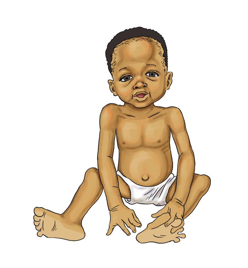 Breastfeeding - Malnourished baby 0-6mo - 04 - Burkina Faso
