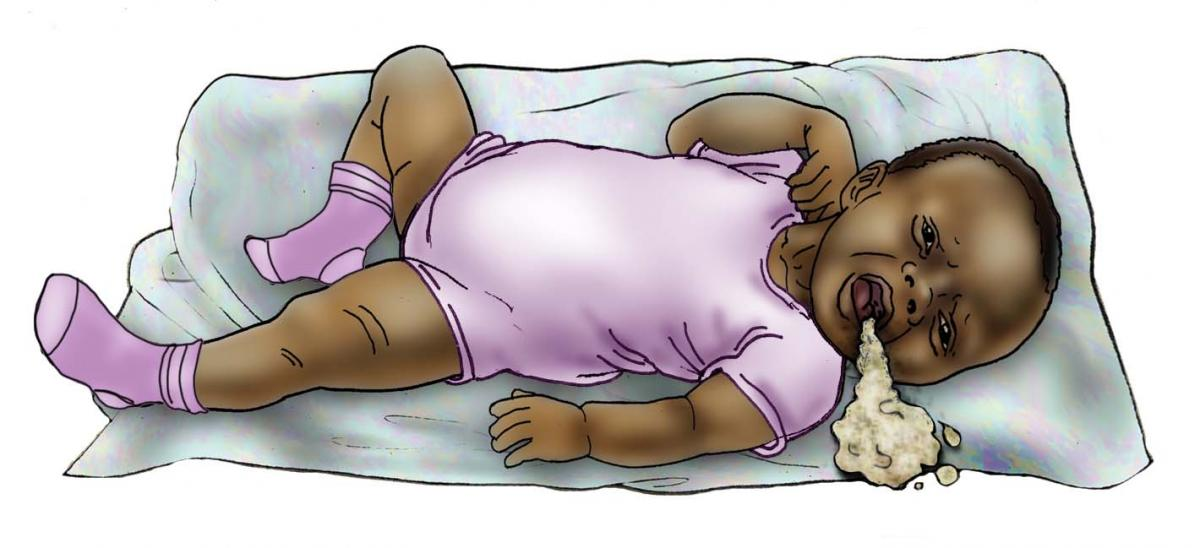 Sick Baby Health Care - Signs of sick baby - vomitting 0-6 mo - 01 - Nigeria
