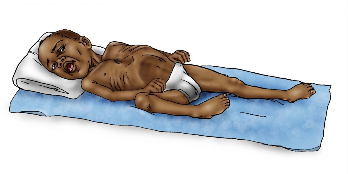 Sick Baby Health Care - Sick baby - respiratory distress 12-24 mo - 00A - Non-country specific