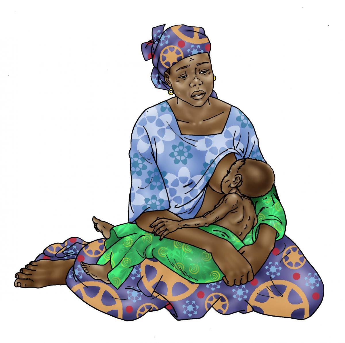 Sick Baby Nutrition - Mother breastfeeding sick baby 0-24 mo - 01 - Niger