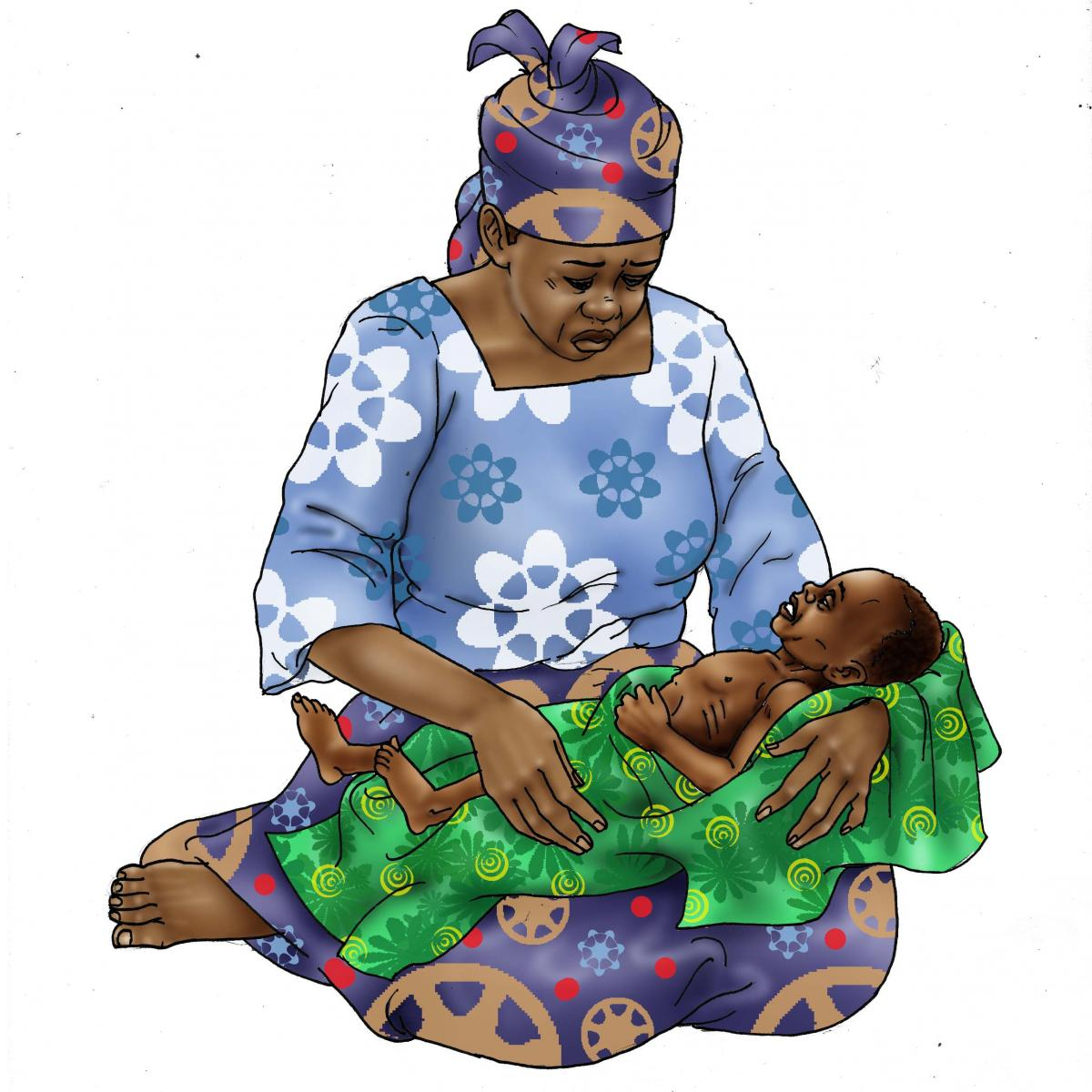Sick Baby Health Care - Dehydrated and Malnourished baby 0-6 mo - 01 - Niger