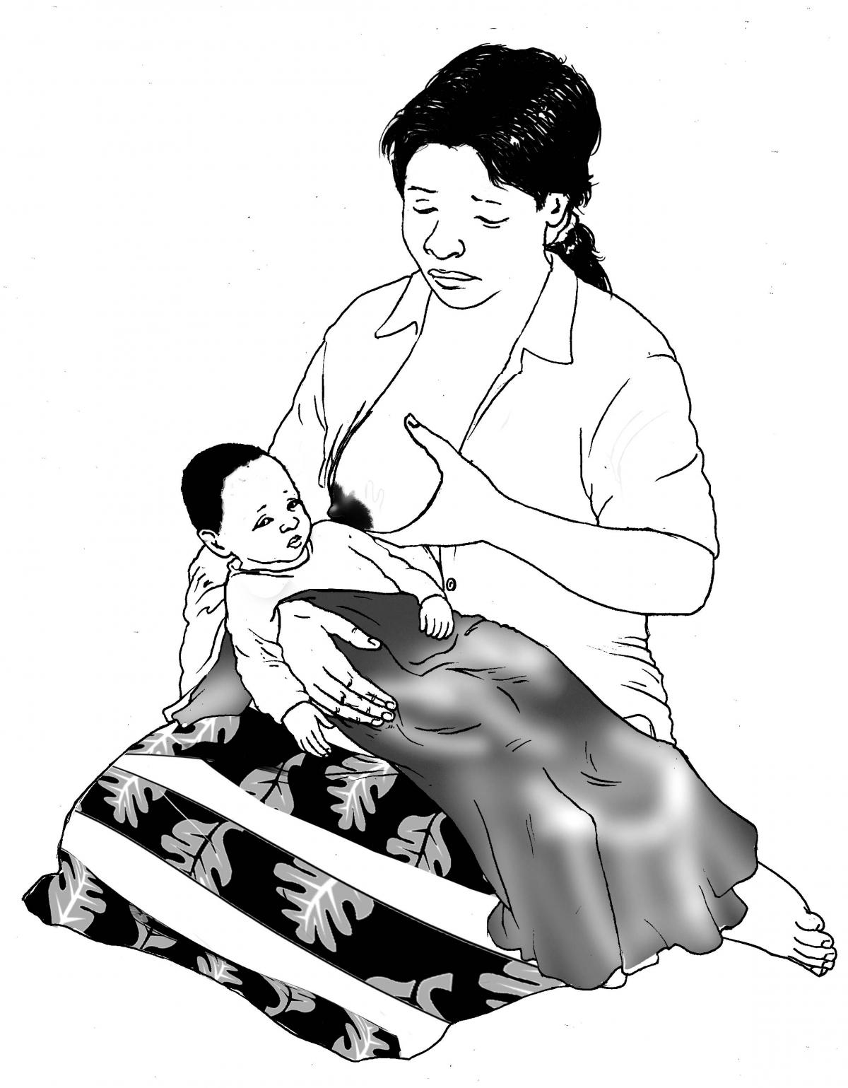 Sick Baby Nutrition - Sick baby refuses to breastfeed - 02 - Non-country specific