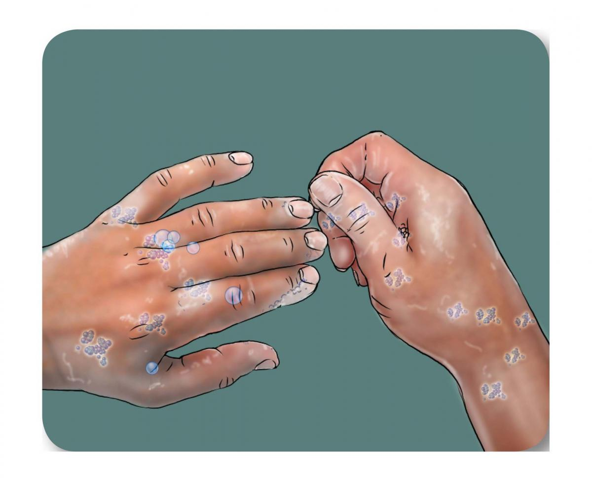 Hygiene - Handwashing - 07 - Unknown