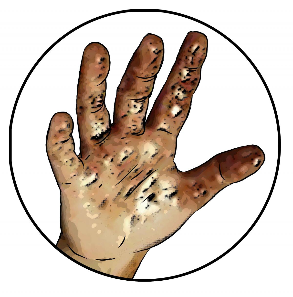 Hygiene - Child's dirty hand - 01 - Nigeria