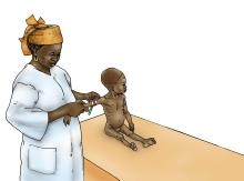 Baby Health Care - Sick baby being measured at clinic 6-9 mo - 03C - Non-country specific