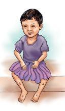 Sick Child Health - Malnourished toddler - 02 - Nepal