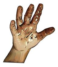 Hygiene - Child's dirty hand - 00 - Nigeria