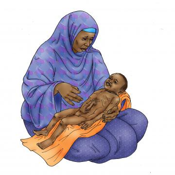 Sick Baby Nutrition - Dehydrated baby 6-24 mo - 04 - Niger