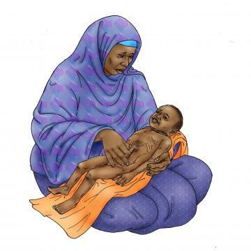 Sick Baby Nutrition - Dehydrated baby 6-24 mo - 05 - Niger