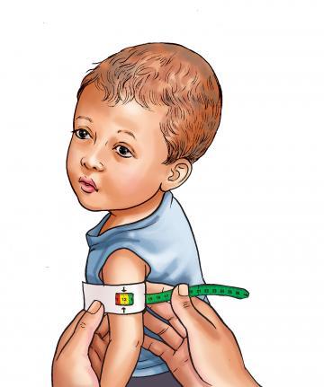 Sick Child Health - MUAC results - Moderate Acute Malnutrition 0-6mo - 04 - Nepal