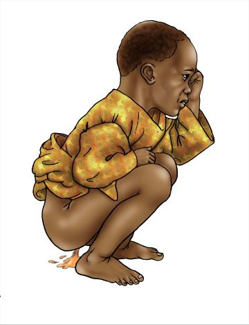 Family - Toddler with diarrhea - 00 - Nigeria