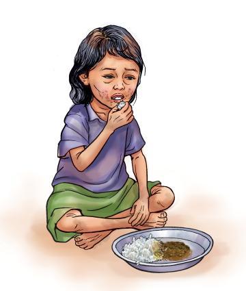 Sick Child Health - Undernourished child eating monotonous diet - 01 - Nepal