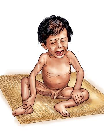 Sick Child Health - Malnourished baby - 00 - Nepal