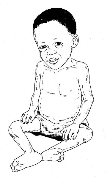 Sick Baby Health Care - Malnourished baby 6-24 mo - 00 - Non-country specific